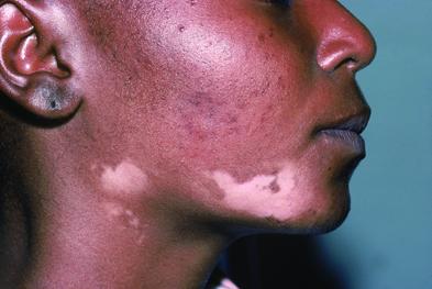 of melanoma and non melanoma skin cancer a study suggests