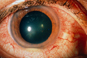 Neoral approved for treatment of sight-threatening uveitis