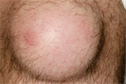 Pictorial case study - Prepatellar bursitis