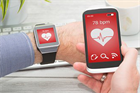 What does the future hold for wearables?
