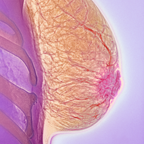 Referral Guidelines for Breast Disorders