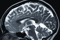 How creativity in TV advertising impacts the brain