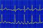 Apixaban 'better than aspirin' in atrial fibrillation