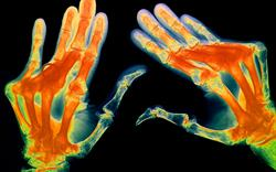Abatacept now approved for rheumatoid arthritis after failure of conventional DMARDs