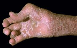NICE approves further treatment options for psoriatic arthritis