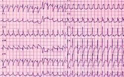 Cardiac warning for anticholinergic injection