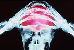 NICE approves Botox for migraine prophylaxis