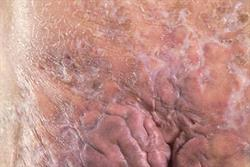 2 CPD credits: Clinical Review: Hidradenitis suppurativa