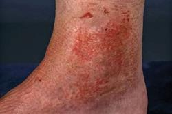 1.5 CPD credits: Psychodermatology: Diagnosis of artefactual skin disorders