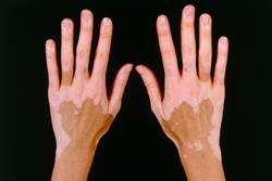 1 CPD credit: Management of patients with vitiligo