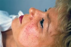 Aesthetic dermatology: Treatment of facial telangiectasia
