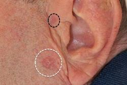 Malignancy: Diagnosing and managing basal cell carcinoma