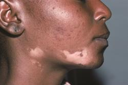 Risk of skin cancer in patients with vitiligo