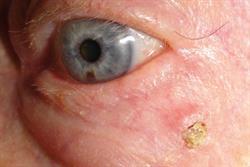 Common benign skin lesions in the elderly