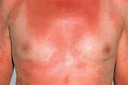 2.5 CPD credits: Clinical Review: Photodermatoses