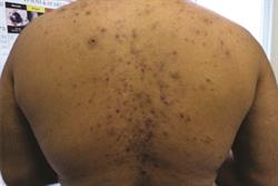2 CPD credits: MIMS Dermatology Guide to Acne: Clinical Review