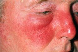Management of cellulitis and erysipelas