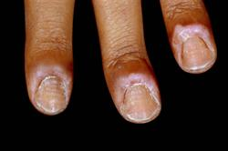 Nails: Examining the nails as an aid to diagnosis