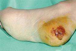 Management of patients with pressure ulcers