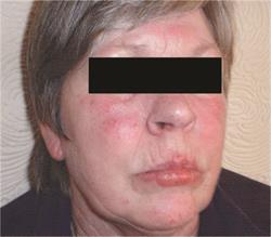 Management of chronic actinic dermatitis