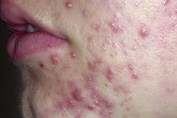 The management of acne in primary care