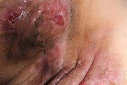 Therapeutic options in hidradenitis suppurativa
