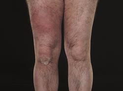 2 CPD credits: Clinical Review: Cellulitis