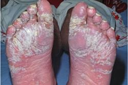 Biologics in the treatment of psoriasis