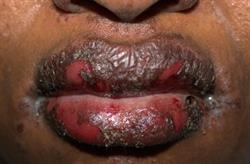 Cutaneous reactions associated with HIV drug therapy