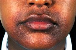 Childhood granulomatous periorificial dermatitis