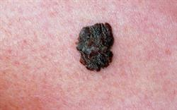 Teledermoscopy to diagnose melanoma