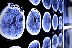 One in three AF patients not receiving anticoagulants to manage stroke risk