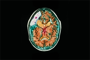 Clinical Review - Stroke