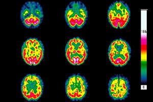 Clinical Review: Huntington's disease