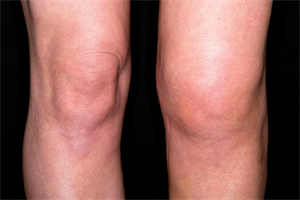 Management of ACL rupture