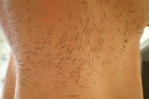 Management of pseudofolliculitis barbae