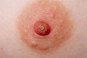 Red flag symptoms - Nipple discharge