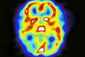 Headache Fact File - Part 3 - Migraine
