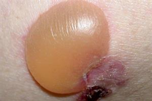 Clinical review: Bullous pemphigoid