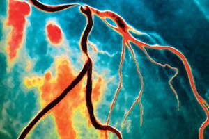 Journals watch - Depression, antibiotics and coronary artery disease
