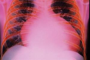 Evidence base: Heart failure