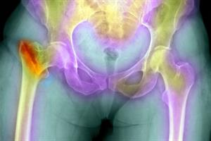 Osteoporosis tool assists screening in primary care