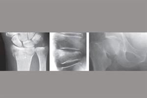 Clinical Review - Osteoporosis