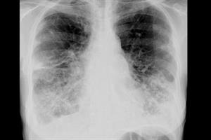 How the national strategy for COPD will improve care