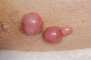 Clinical images: Lumps and bumps