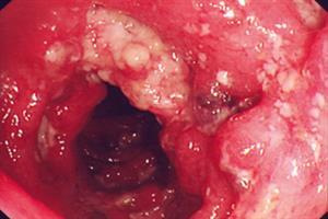 Clinical Review: Crohn's disease