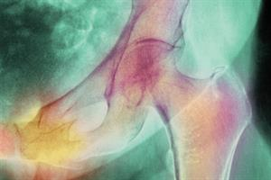 Journals Watch - Fracture risk and melanoma