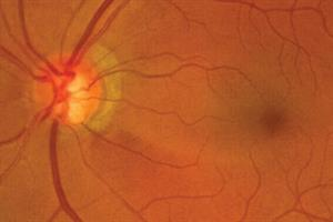 Clinical Review - Glaucoma