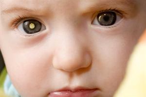 Eye disease - Recognising retinoblastoma