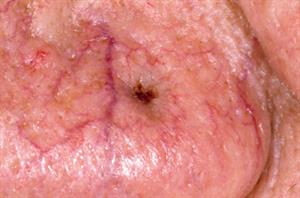 Pictorial case study - Basal cell carcinoma